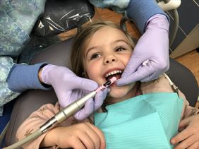 lakowanie zębów mlecznych