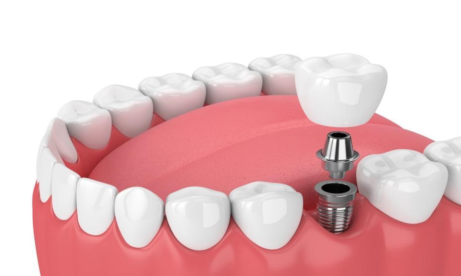 Dlaczego warto zdecydować się na implanty zębowe?