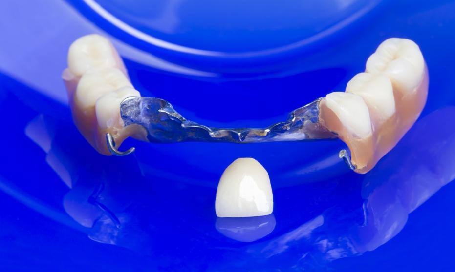 Wady i zalety protezy akrylowej