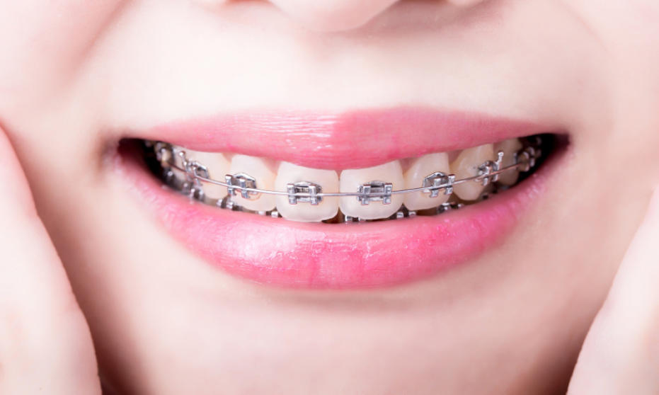 Aparat ortodontyczny sposobem na ładny uśmiech