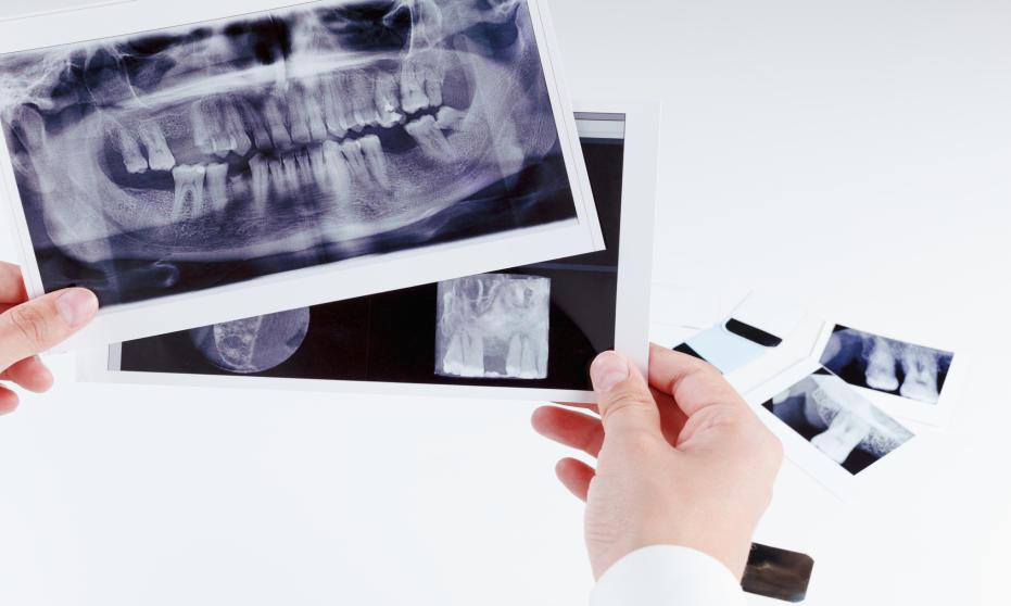 Rodzaje zdjęć RTG wykorzystywanych w stomatologii
