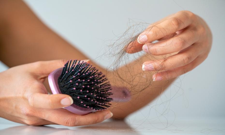 Nadmierne wypadanie włosów. Co może być przyczyną?