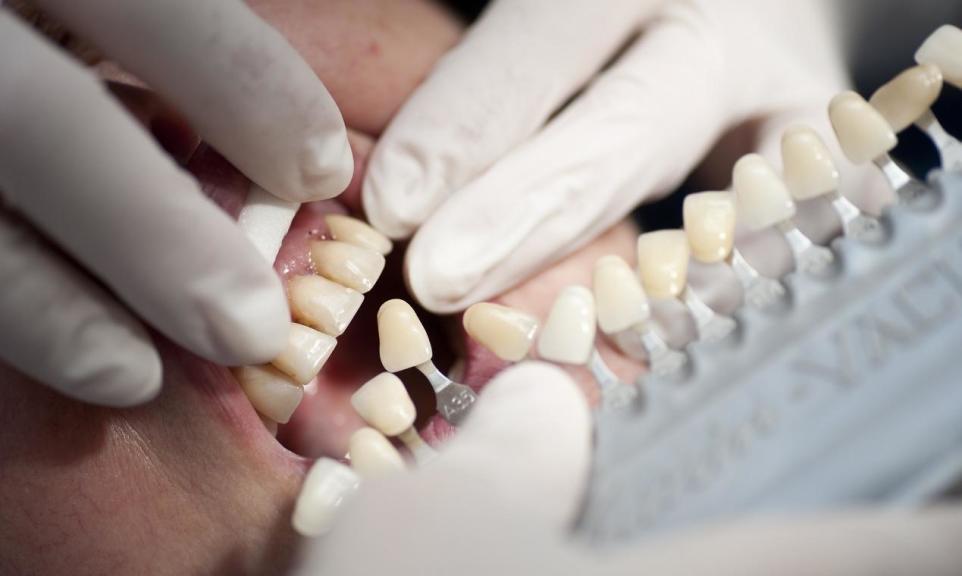 Na czym polega bonding zębów?