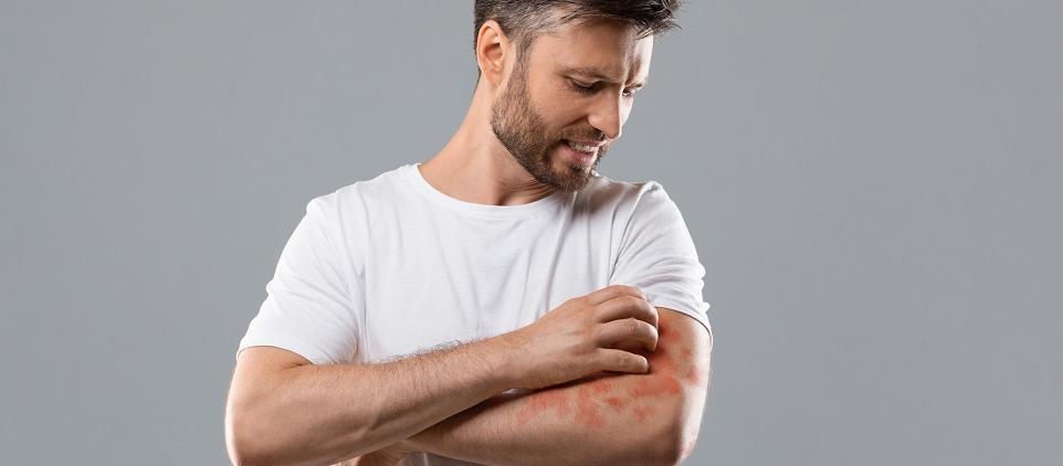 Z jakimi chorobami mogą być związane zmiany na skórze?