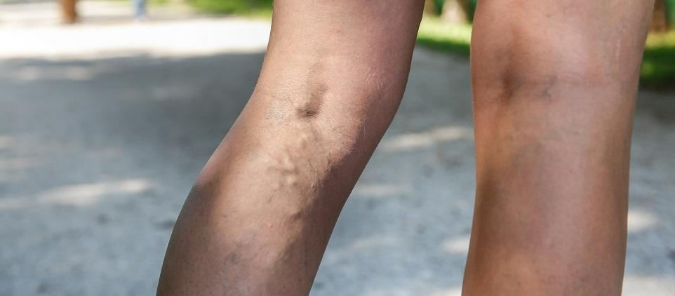 Skąd biorą się żylaki i dlaczego są groźne dla zdrowia?