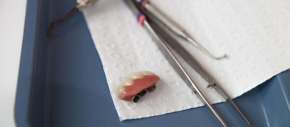 Jakie są przeciwwskazania do założenia implantów zębowych?