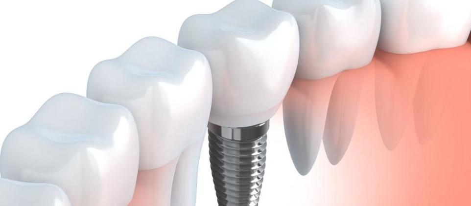 Rodzaje implantów zębowych