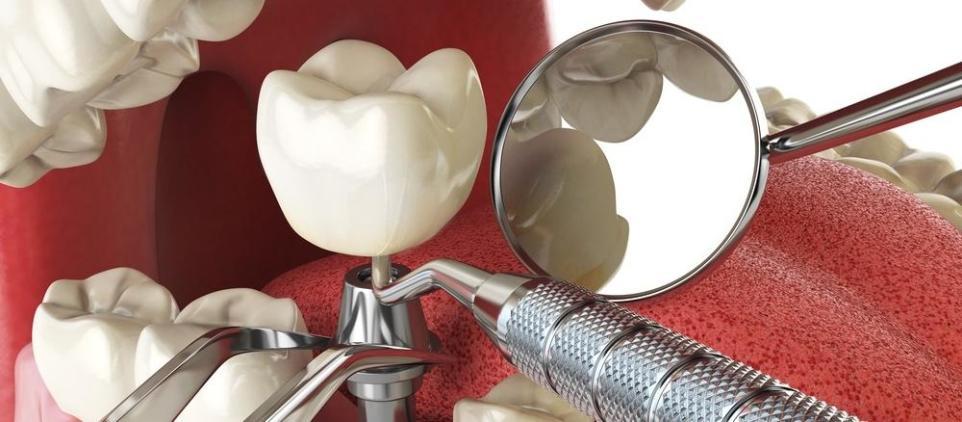 Profesjonalny stomatolog z Chorzowa informuje: etapy wszczepiania implantów zębów