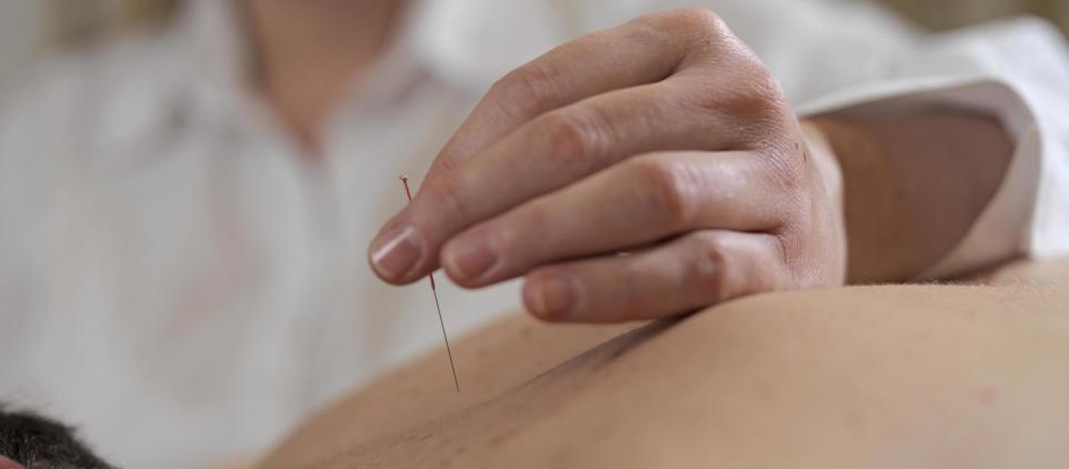 Co leczy akupunktura?