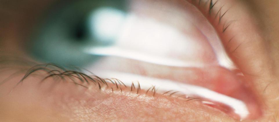 Jak leczyć jęczmień na oku? Przyczyny i metody leczenia