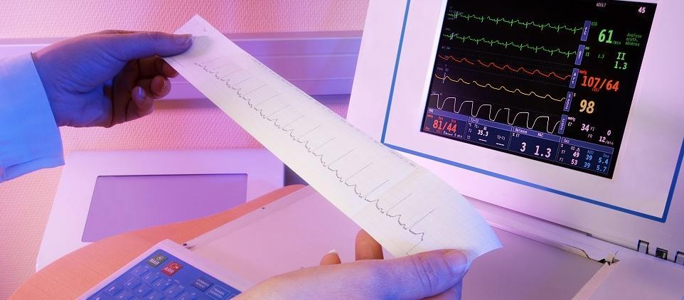 Na czym polega badanie EKG i kiedy się je wykonuje?