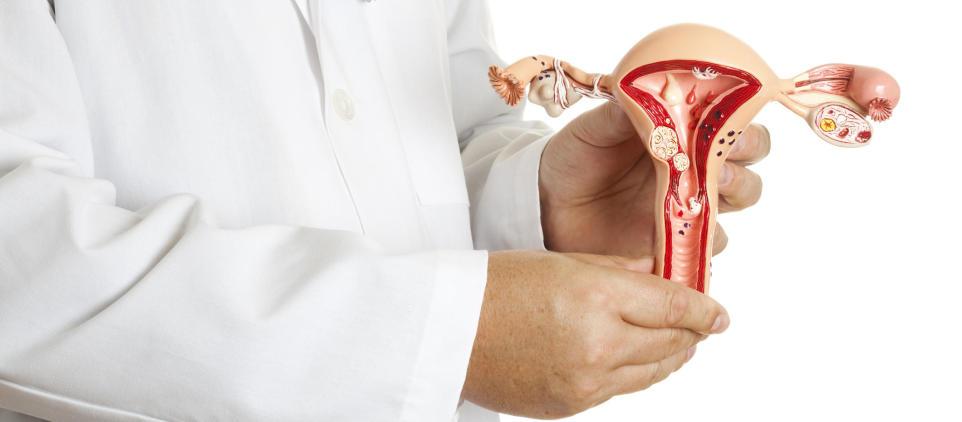 Co to jest endometrioza? Objawy, leczenie, przyczyny