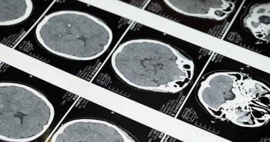 Choroby neurologiczne po 65 roku. Na co najczęściej chorują seniorzy?