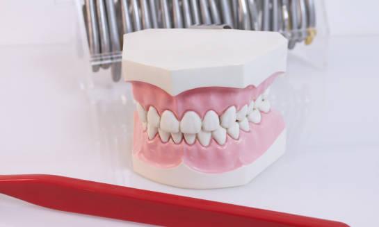 Leczenie protetyczne przy brakach częściowych lub skrzydłowych gwarancją zachowania zębów przednich