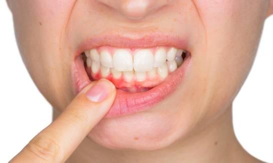 Przyczyny powstawania i sposoby leczenia chorób przyzębia