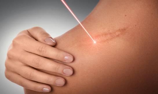 Laserowe usuwanie blizn. Co warto wiedzieć?
