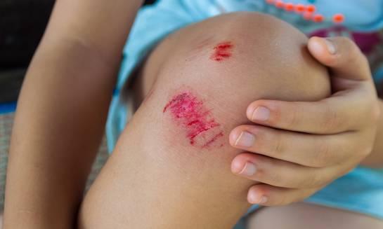 Sposoby na przyspieszenie gojenia ran