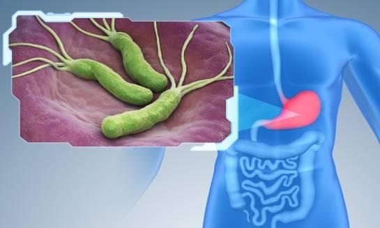 Diagnozowanie Helicobacter pylori