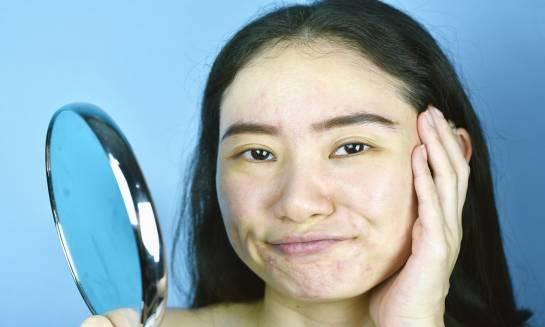 Co to znaczy, że preparat jest hypoalergiczny?