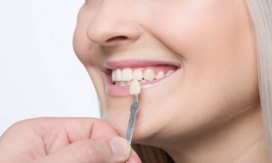 Licówki kompozytowe w stomatologii estetycznej