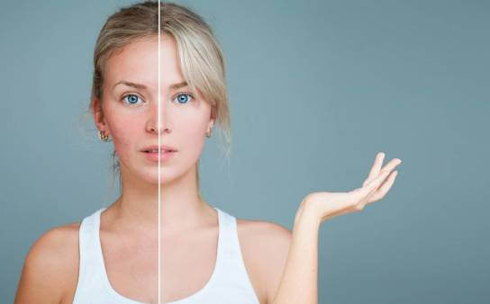 Leczenie trądziku u dorosłych – kiedy pomoże kosmetyczka, a kiedy warto wybrać się na wizytę do dermatologa?