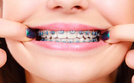 Wskazania do założenia aparatu ortodontycznego