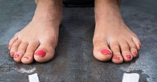 Terapia jonowa jako sposób na nadpotliwość