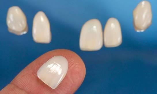 Licówki, czyli sposób na piękne zęby