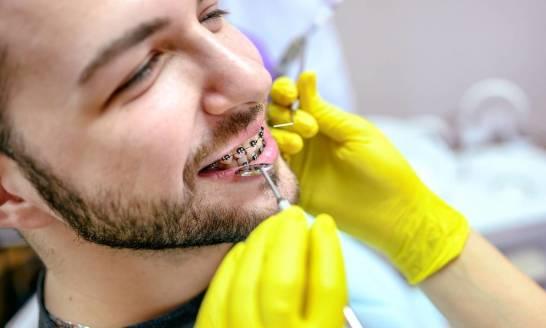 Czy leczenie aparatem ortodontycznym jest możliwe w każdym wieku?
