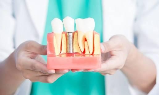 Dlaczego implanty to doskonały sposób uzupełnienia ubytków zębowych?