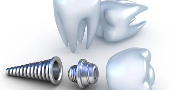 Dlaczego warto inwestować w implanty zębów?