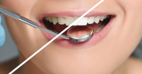 Zalety wybielenia zębów metodą nakładkową