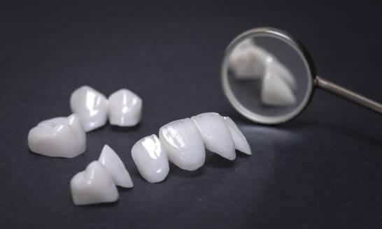 Czym jest protetyka stomatologiczna? Zakres zabiegów i wskazania