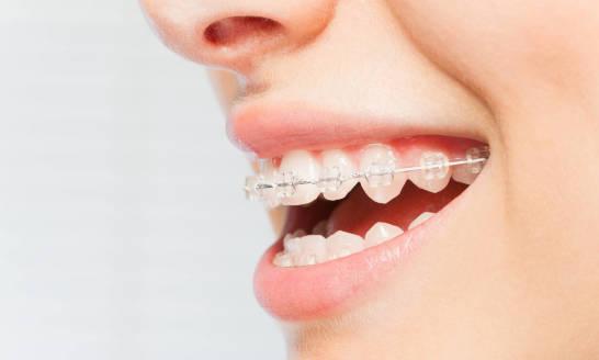 Co warto wiedzieć przed założeniem aparatu ortodontycznego?