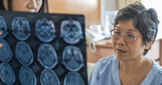 Jakie choroby mózgu mogą wywoływać otępienie?
