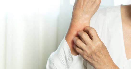 Czy pokrzywka jest zaraźliwa? Objawy i przyczyny