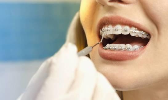 Dla kogo są przeznaczone aparaty ortodontyczne stałe, a dla kogo ruchome?