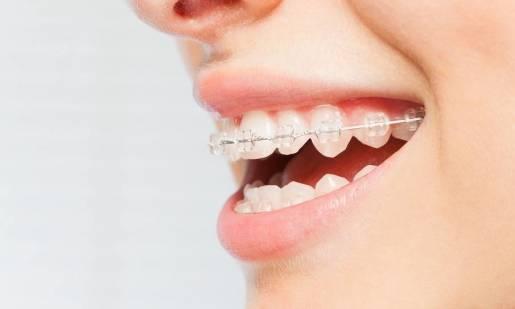 Klasyczne i nowoczesne aparaty na zęby