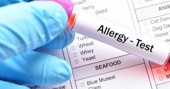Eozynofile w kontekście alergii