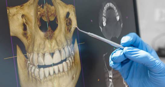 Tomografia szczęki - kiedy jest niezbędna
