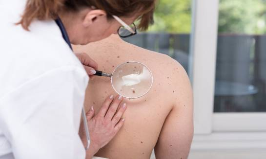 Skuteczne sposoby usuwania zmian skórnych – zabieg LAMPROBE