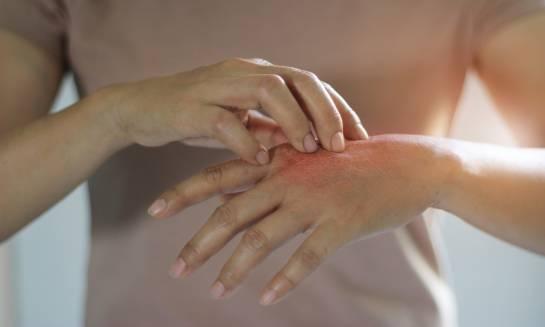 Alergia kontaktowa - objawy, diagnostyka, postępowanie