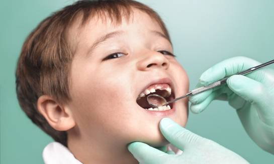 Kiedy ząb mleczny kwalifikuje się do usunięcia?