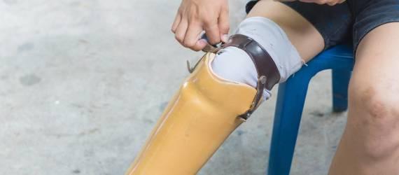 Jak dbać o protezy kończyn dolnych i górnych?
