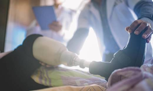 Jak dobrać protezy kończyn dolnych?