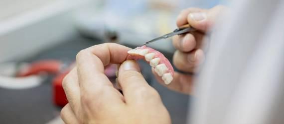 Rodzaje protez zębowych