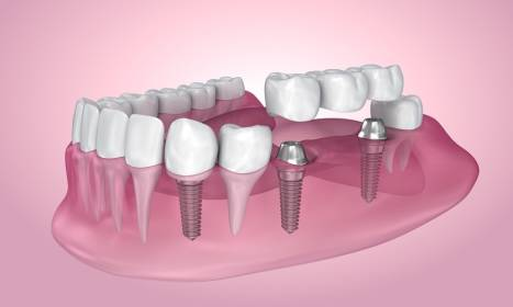 Implanty zębowe. Kiedy i komu są dedykowane?