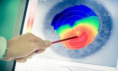 Topografia rogówki – u kogo wykonać badanie?