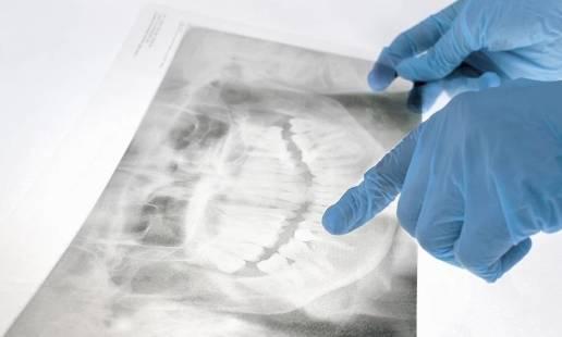 Jak przebiega wykonanie panoramicznego zdjęcia zębów i kiedy się je wykonuje?