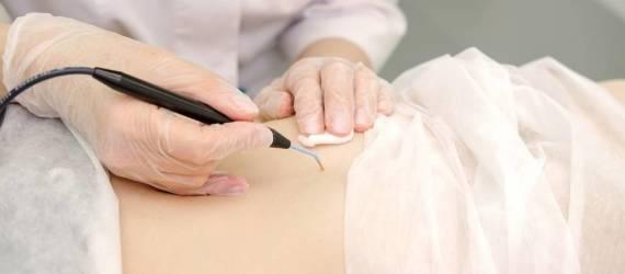 Metody usuwania znamion skórnych